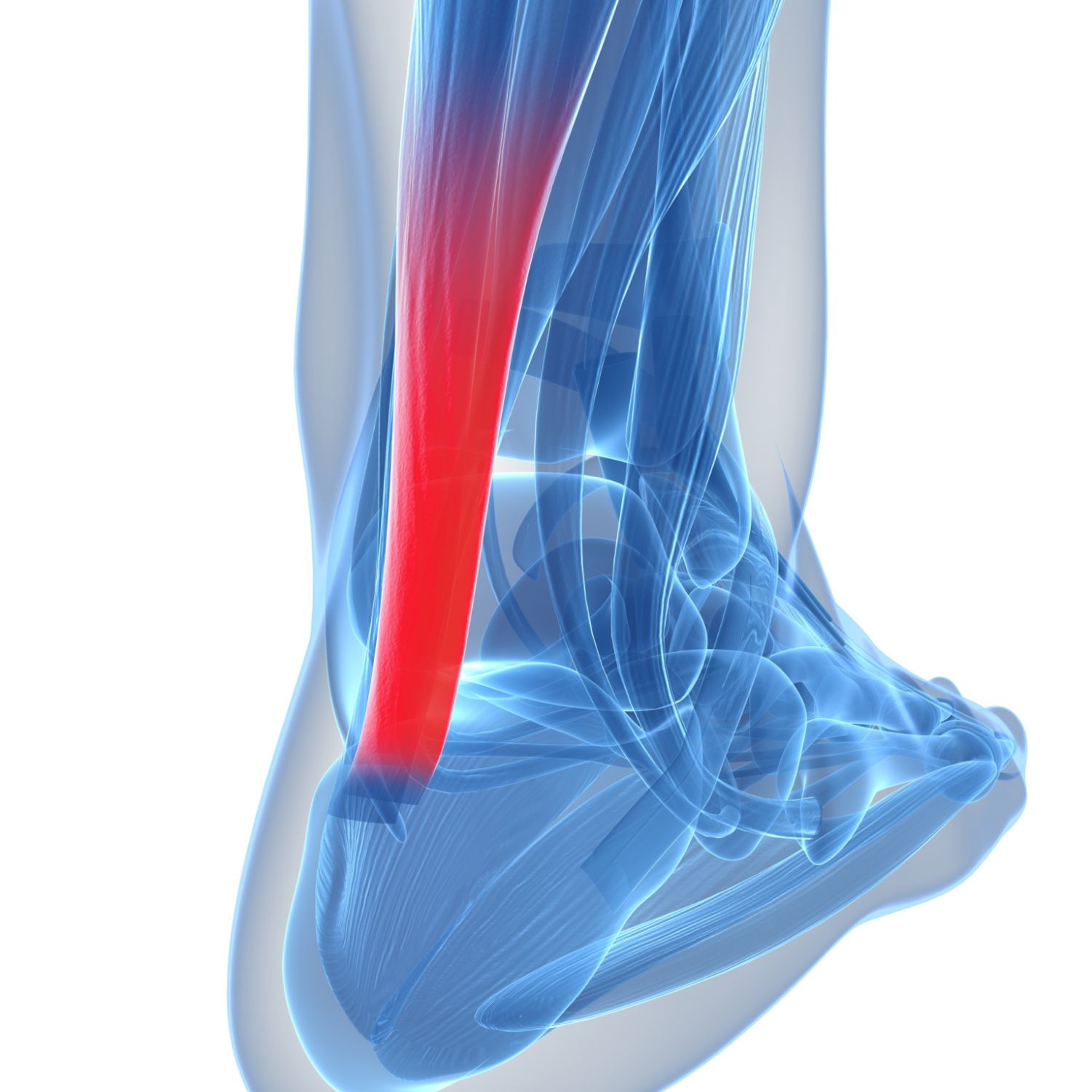The achilles tendon is most likely place to get tendonitis on the Camino