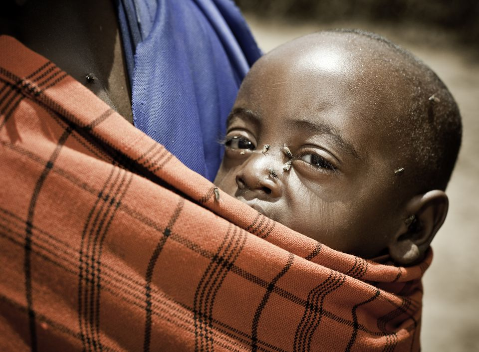African child with flies covering his face