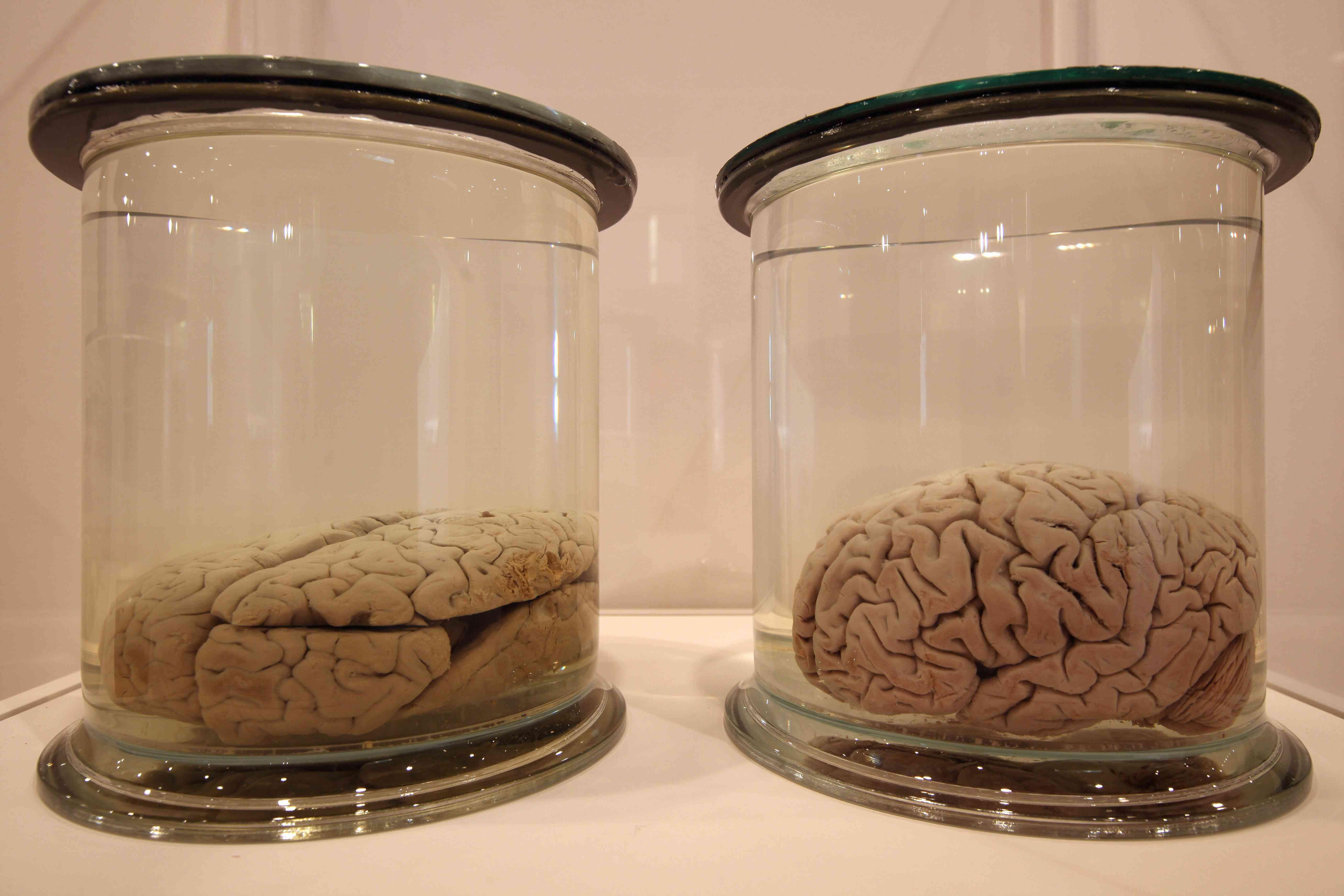 Brains on display in jars