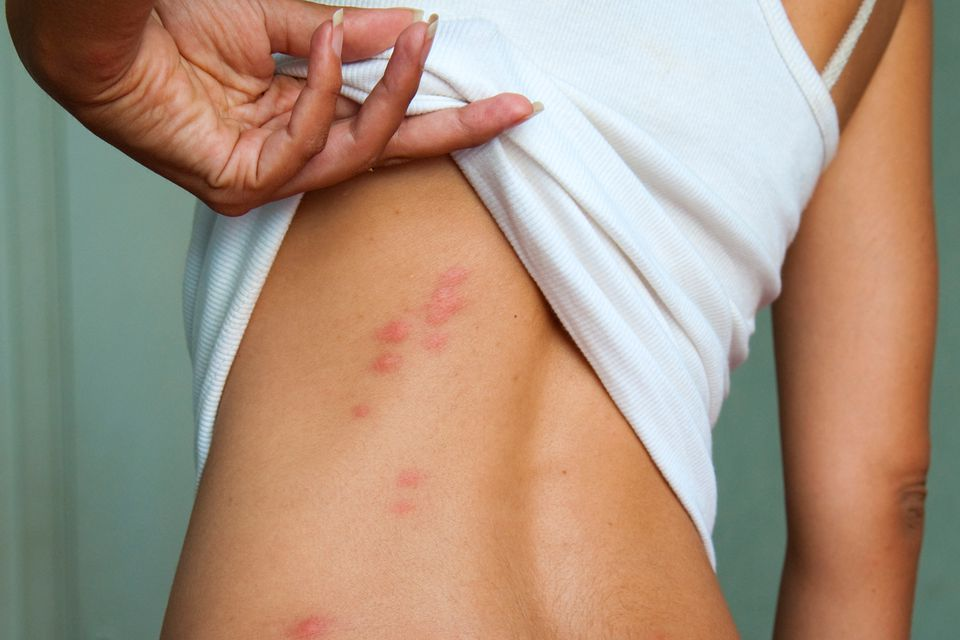 Bedbug bites on woman's back