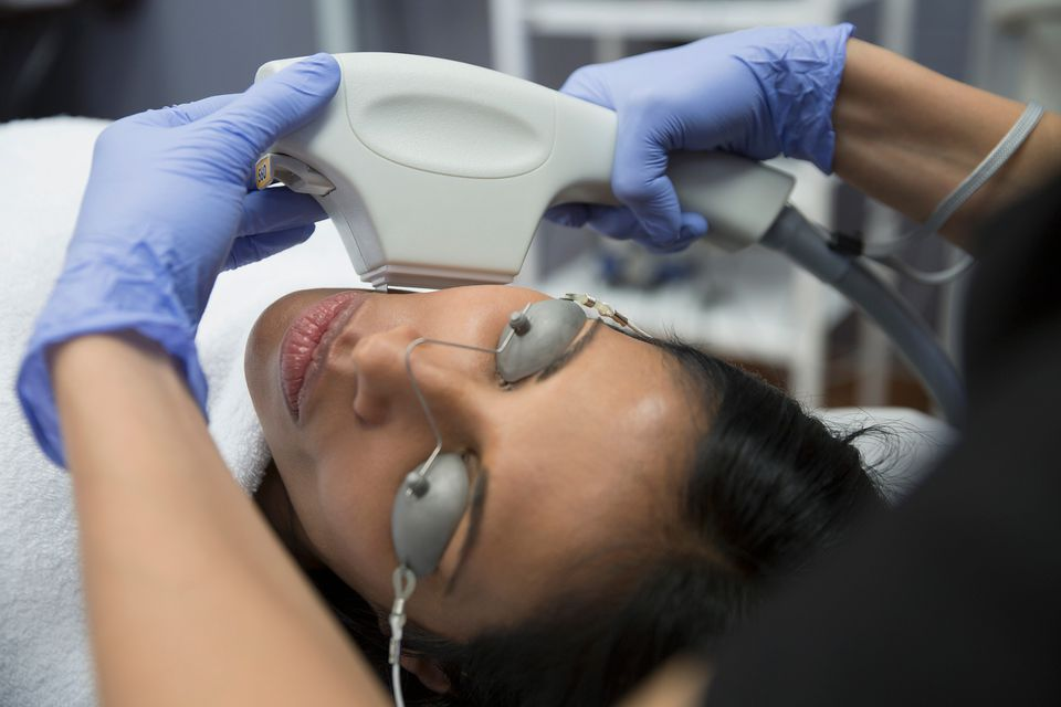 Photofacial Treatment